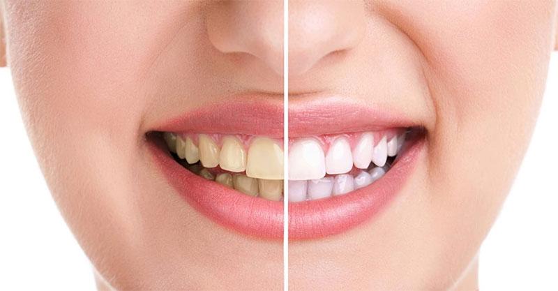 Theramed Complete Plus Làm Sạch Răng Với Calcium.